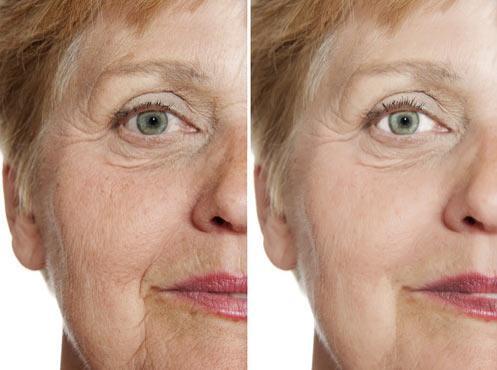 Før-og-efter-billeder-ved-brugen-af-en-dermaroller