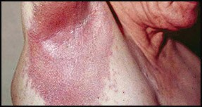 invers-psoriasis