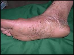 pustuloes-psoriasis