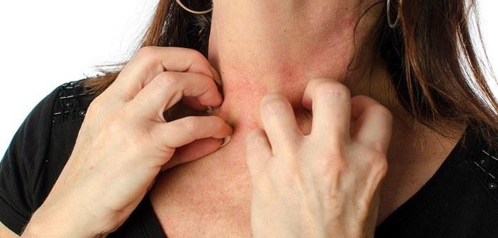 Fnat symptomer på Behandlingsvejledning ved